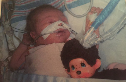 Little fighter: Baby Isabelle fights for her life amid a congenital heart disease diagnosis. (Contributed photos)